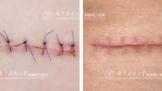 手术后为什么会出现疤痕增生?怎样才能消除变平